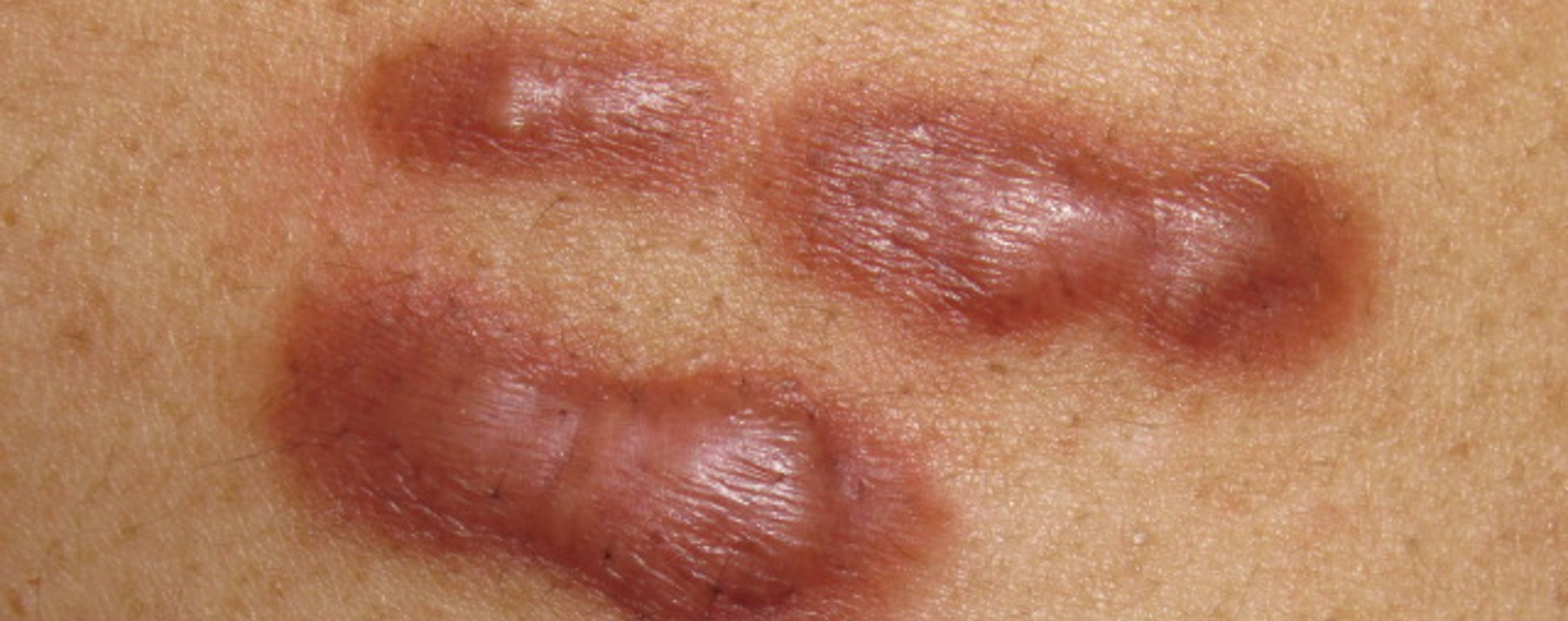 Dealing with keloid scars